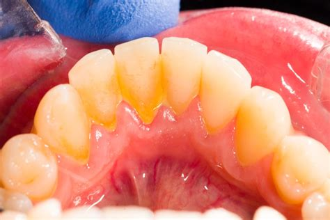 Yellow calculus and plaque on teeth - Sutton Place Dental